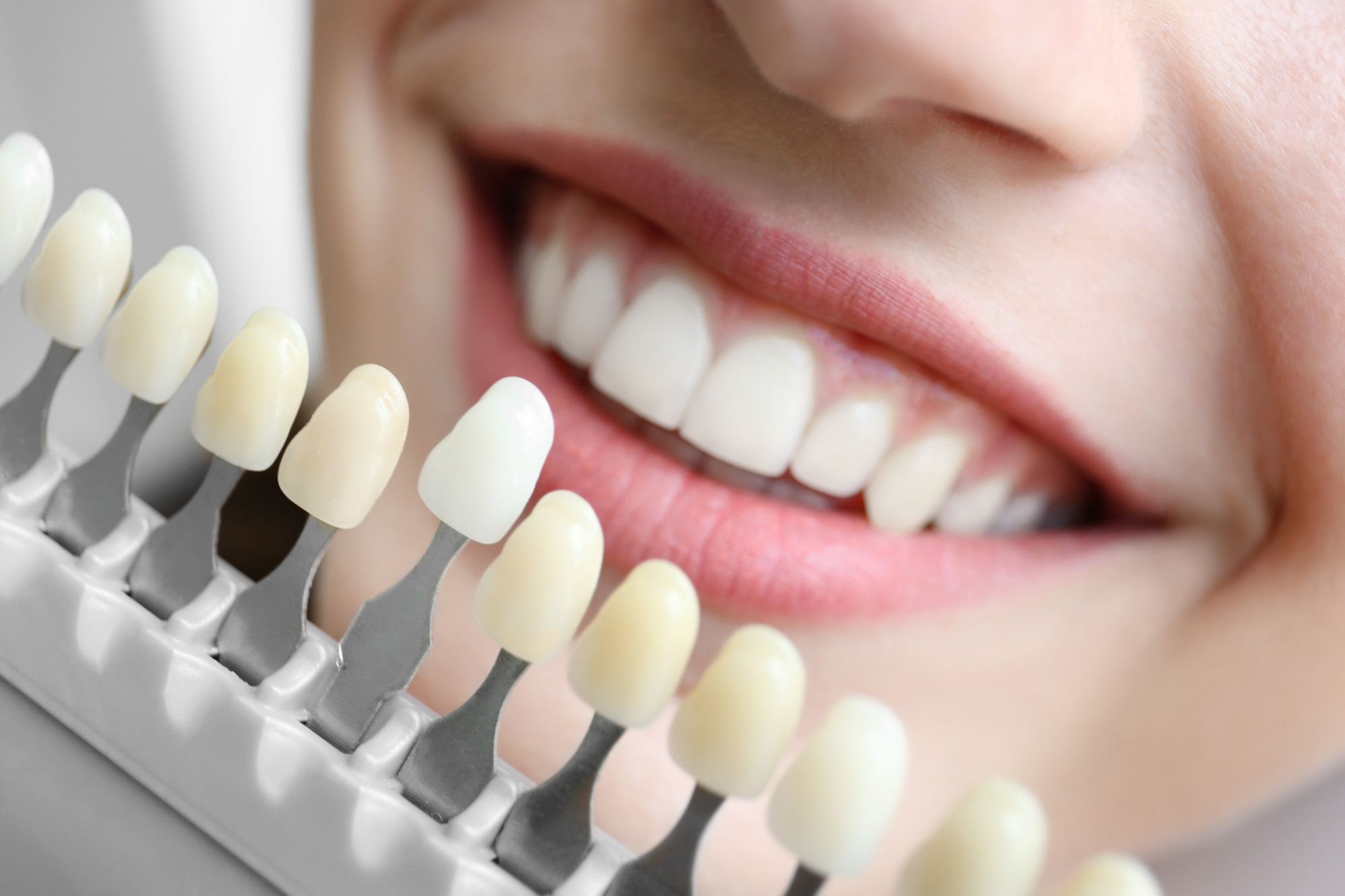 questions about dental implants